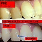 ドクター オーラル 効果 【レビュー】歯の黄ばみを落とすドクターオーラル!効果や感想につい...